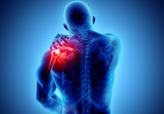 Ruptura tendoane medicotop consultatii medicale